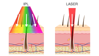 IPL Laser Diagram