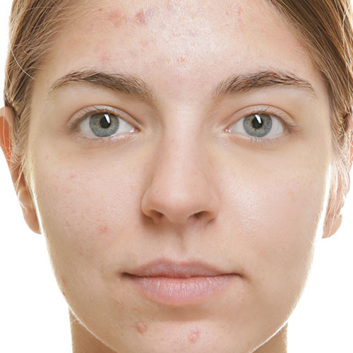 Acne before treatment