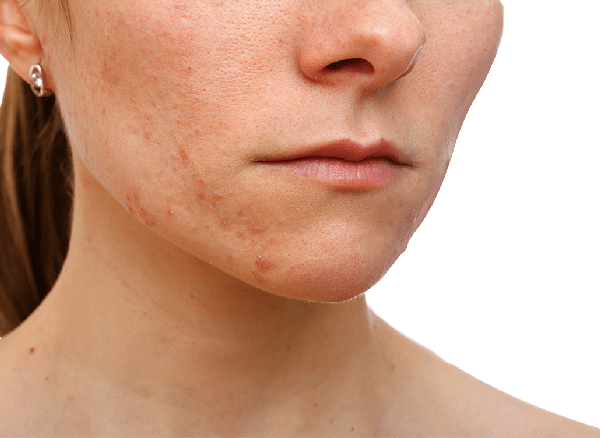 acne on chin and cheeks
