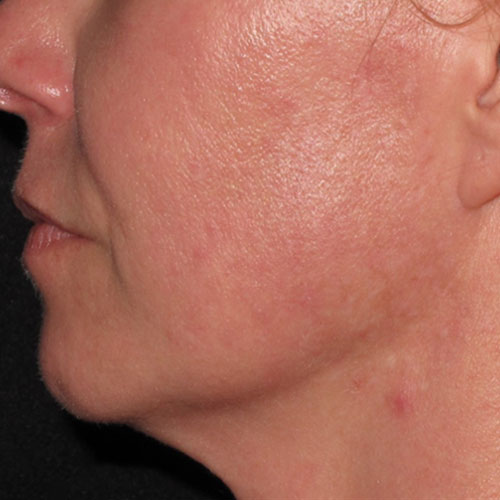 acne laser therapy after
