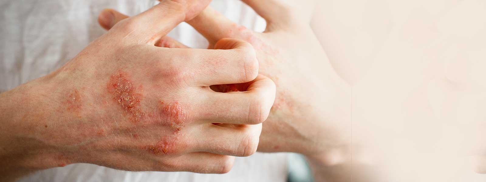 eczema relief banner