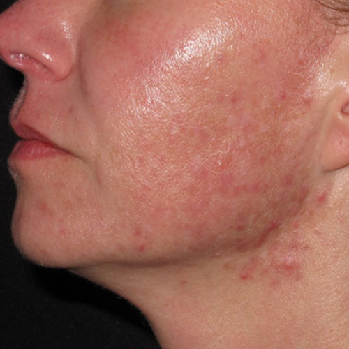 acne laser therapy before