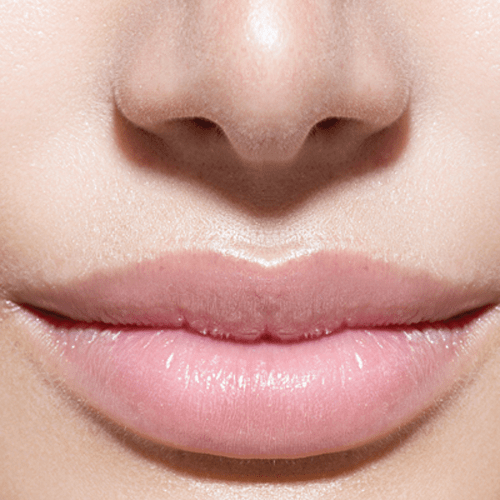Lips after botox