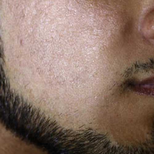 co2 laser acne scarring after