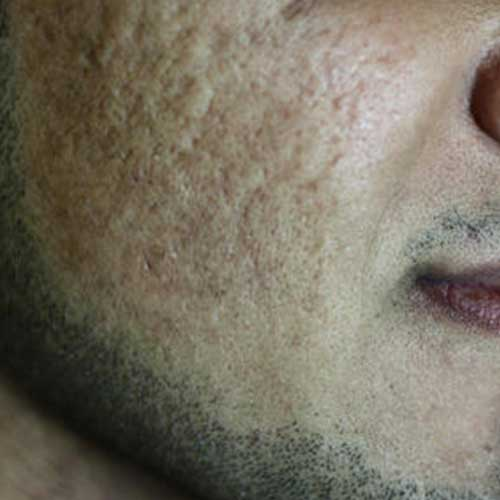 Co2 Laser Acne Scarring Before