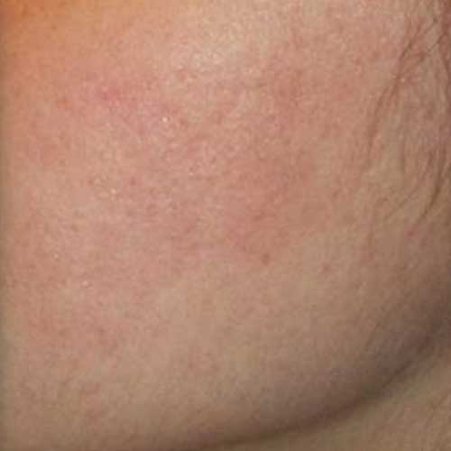 Genius Laser Acne Scarring After