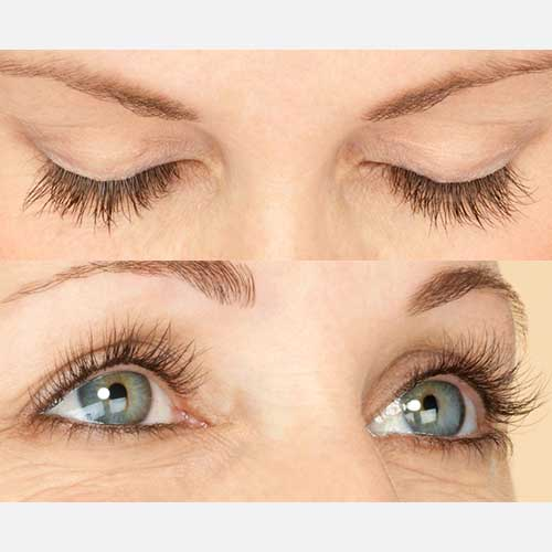 Latisse Eyelash After