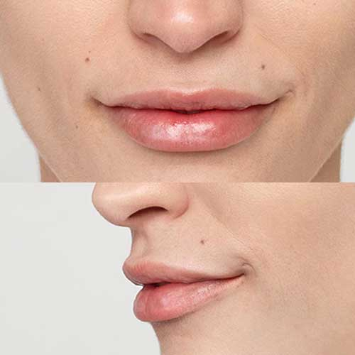 Restylane Lips After