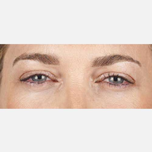 Xeomin Brow Lines After