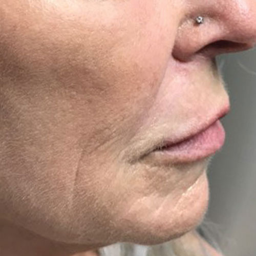 co2 mixto laser - right side of face after